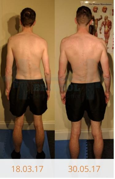 Before and after photos of Callum's 10 week transformation after training with Bristol Personal Trainer
